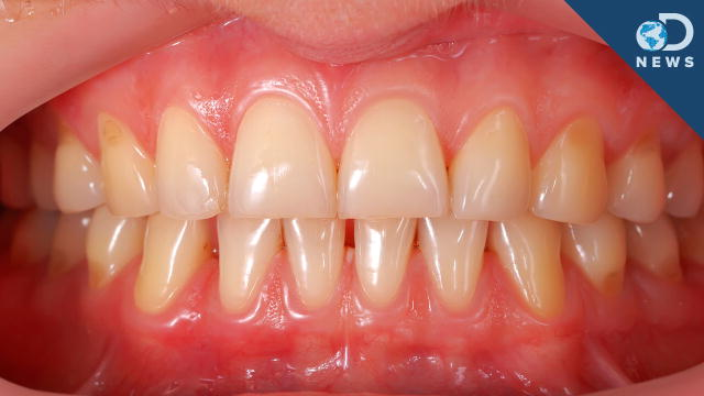 wisdom of getting pulled average cost teeth